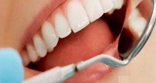 نکات بهداشت دندان ارایشی بیست