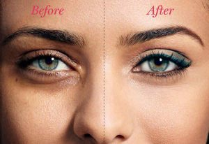 راهکار های از بین بردن سیاهی دور چشم در آرایشی بیست