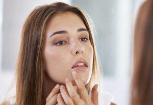 ترفند های آرایشی بیست برای مقابله با جوش