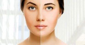 تیره شدن پوست و راههای درمان آن
