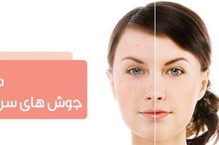 درمان جوش های سر سیاه بینی