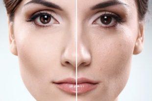 هیالورونیک اسید مفید برای چروک پوست