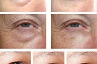 کرم دور چشم هیالورونیک اسید بریلی ضدخشکی