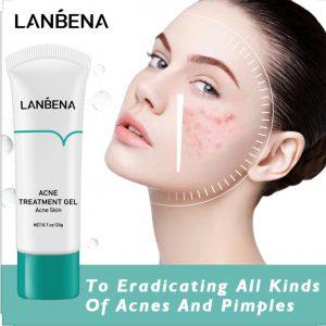 ژل درمان جوش و جای جوش صورت و آکنه لانبنا